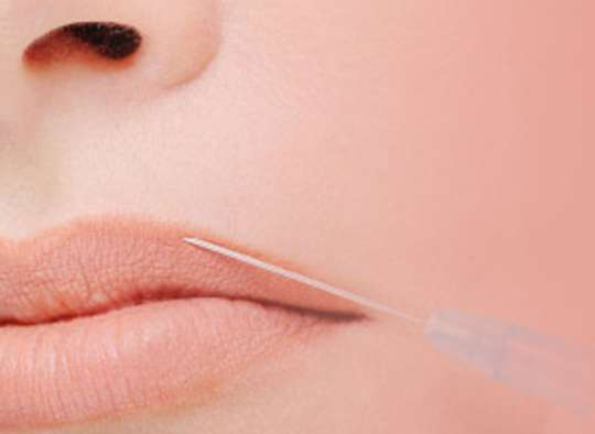 Injectable-Fillers-Best-price-quality-Toronto-GTA